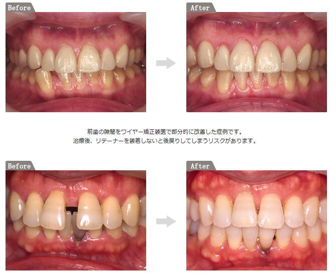 歯の表側につける「目立ちにくい装置」