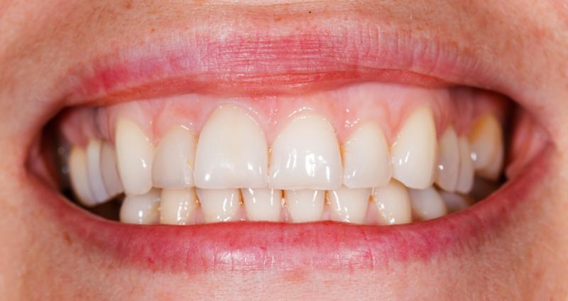 歯茎の色やかたちをキレイに!